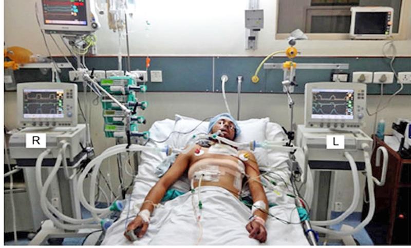 Un paziente ricoverato in terapia intensiva a causa del coronavirus